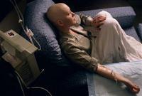 เคมีบำบัดโรคมะเร็งและผลข้างเคียง