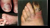 โรคเบาหวานกับการดูแลเท้า