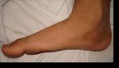 เท้าแบน ( Flat Feet)