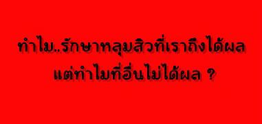ทำไม .. รักษาหลุมสิวที่เราถึงได้ผล และความลับที่คนไทยต้องรู้ เรื่องการรักษาหลุมสิวที่ไปทำที่อื่นไม่ค่อยได้ผลตามโฆษณา ?