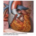 การรักษาระบบหัวใจและหลอดเลือด