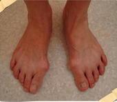 ภาวะนิ้วโป้งเท้าเก (Hallux Valgus)