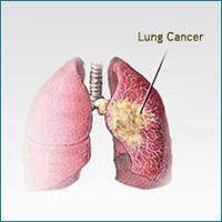 การรักษามะเร็งปอดและผลข้างเคียง