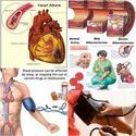 โรคมะเร็ง,โรคหัวใจ,โรคความดัน,โรคไต,โรคโเลสเตอรอล
