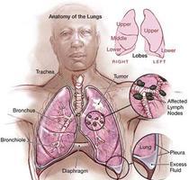ประเภทมะเร็งปอด