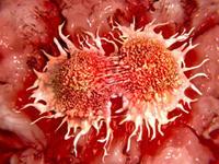 สัญญาณของโรคมะเร็งตับ