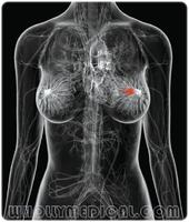 อาการมะเร็งเต้านม