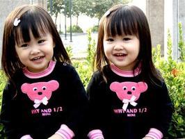 ฝาแฝดแท้มีดีเอ็นเอและลายนิ้วมือเหมือนกันหรือไม่ ?