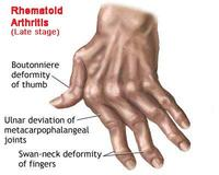 โรคข้ออักเสบรูมาตอยด์ สาเหตุและอาการ