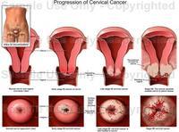 อาการและสาเหตุ โรคมะเร็งปากมดลูก (Cervical Cancer)
